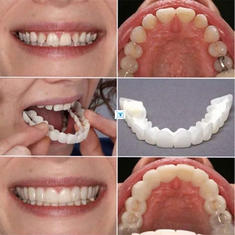 2ชิ้น Snap-On Smile Denture Teeth Top Cosmetic Veneer Cover.